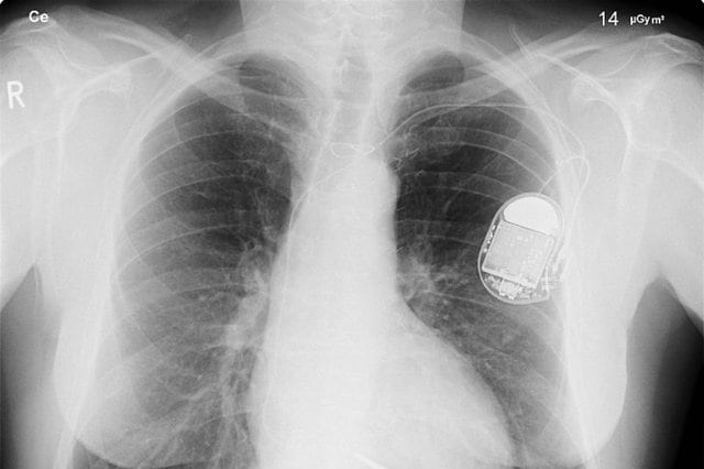 pacemaker biologico