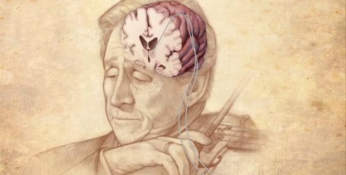 violinista suona durante la propria operazione cervello