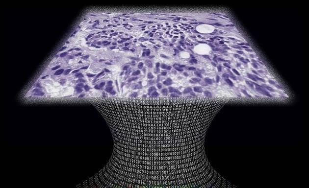 Il microscopio senza lente che scopre i tumori (e costa poco)