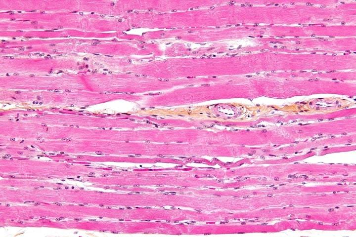tessuto muscolare fhd