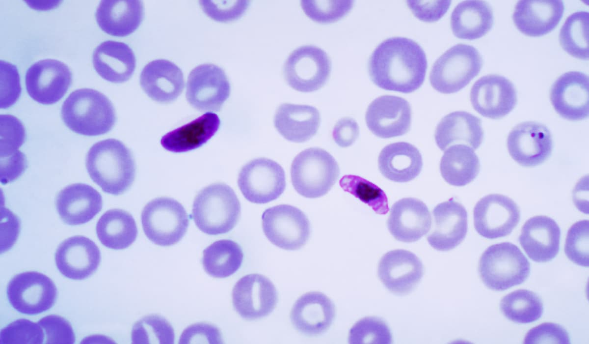 Il primo vaccino per la malaria viene approvato dall'Europa