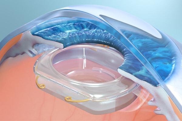 In futuro la realtà aumentata prenderà vita all'interno dei vostri occhi