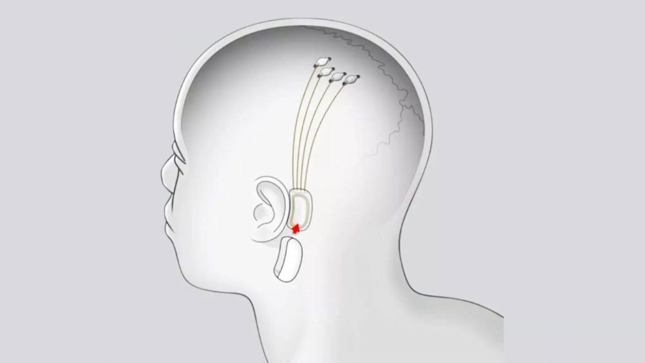 Neuralink: arrivano conferme sulla riproduzione della musica attraverso chip neurali, ma intanto...